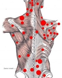 Dry Needling – How can it help you?