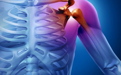 Chiropractic Treatment for Shoulder Impingement
